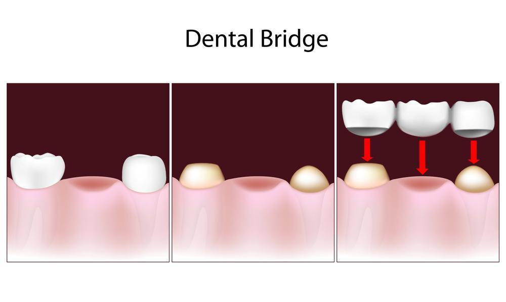 dental crowns and bridges | restorations | columbia il dentist