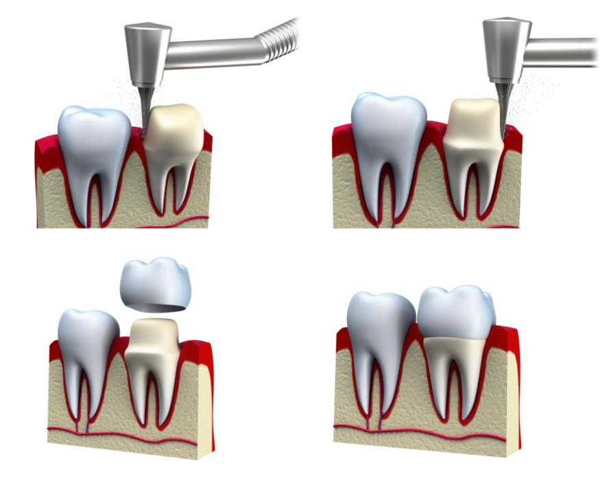 dental implants | columbia il