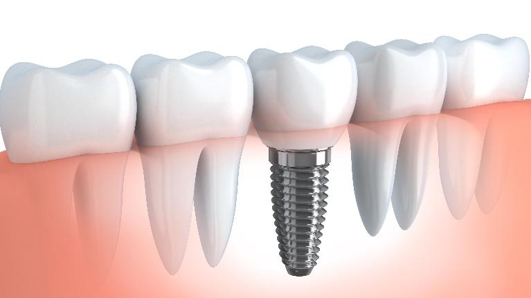 Dental Implants | Workman Family Dental