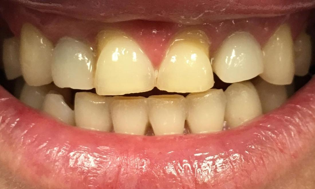 Porcelain Crowns | Workman Family Dental