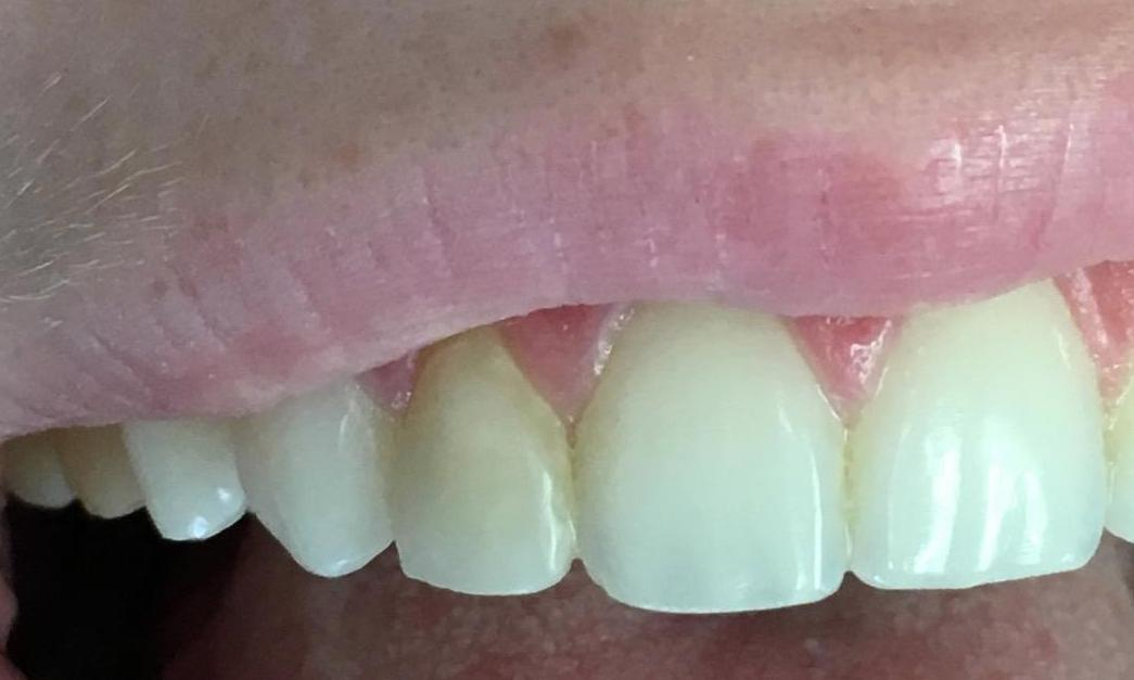 Tooth Colored Fillings | Workman Family Dental