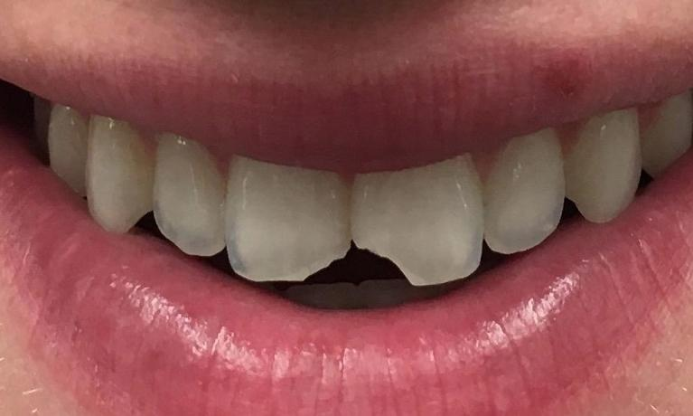 Emergency-Dentistry-Broken-Tooth-Fixed-Using-Tooth-Colored-Filling-Before-Image