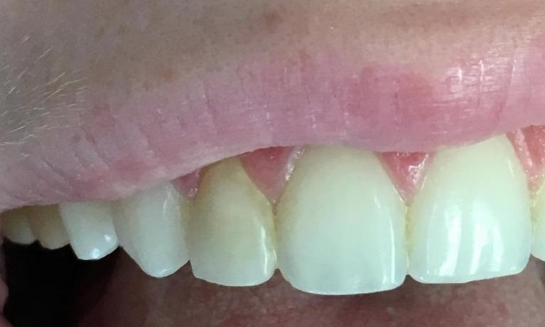 Tooth-Colored-Filling-to-Match-Other-Teeth-Cosmetic-Dentistry-Before-Image